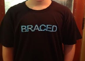 Braces: The Before and After?